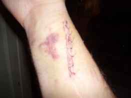 They took the metal out of my arm years later